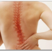 Scoliosis & Chiropractic