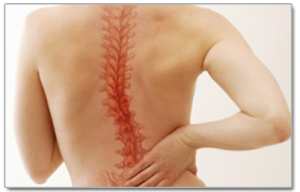 Chiropractic care for patients with scoliosis